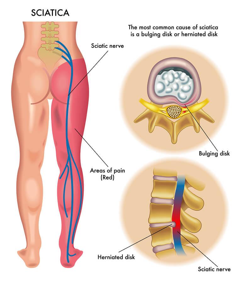 Sciatica, Lower Back Pain, Leg Pain