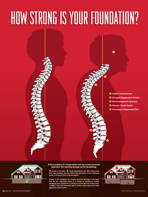 Neuro-Structural Shift